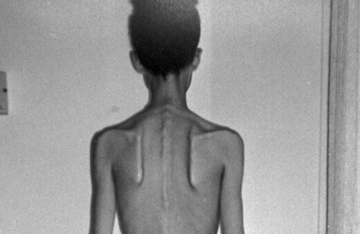 Aumentan las paginas que fomentan la anorexia nutricionista valencia nutt elisa